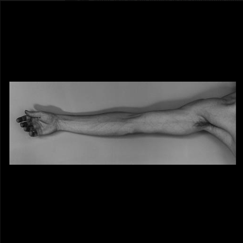 Robert Mapplethorpe, Arm (Self-Portrait), 1976.